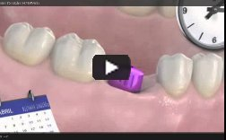 Video Implantes Dentales